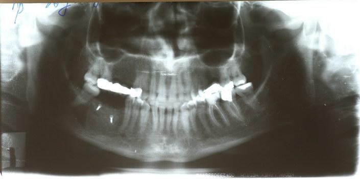 Как предотвратить камни на зубах
